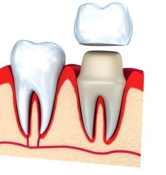Fiksuoti dantų protezai