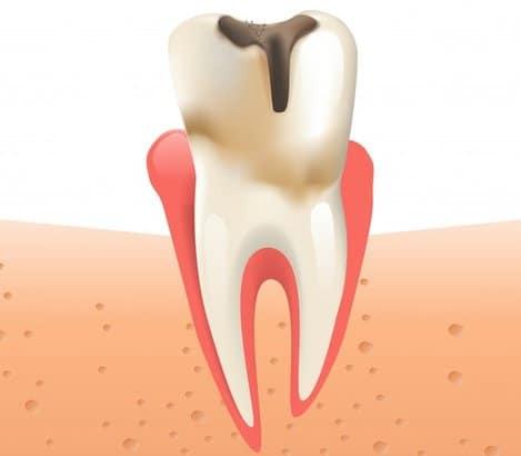 Pulpito pažeistas dantis