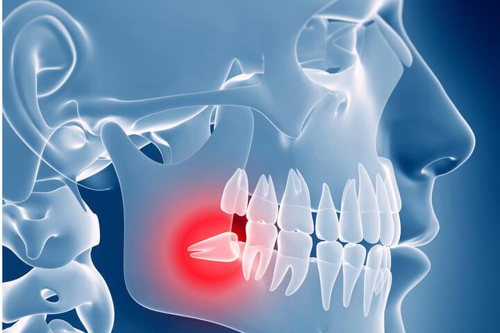 retenuoti dantys